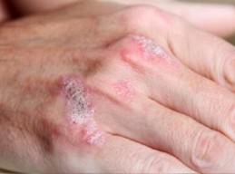 红皮病型牛皮藓常发生于哪些部位?
